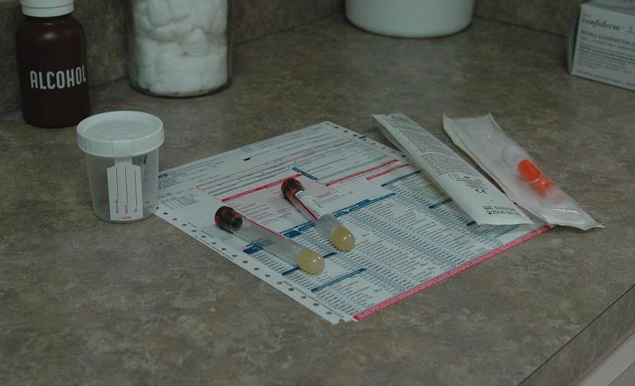 Combien de temps le cbd reste dans l'urine